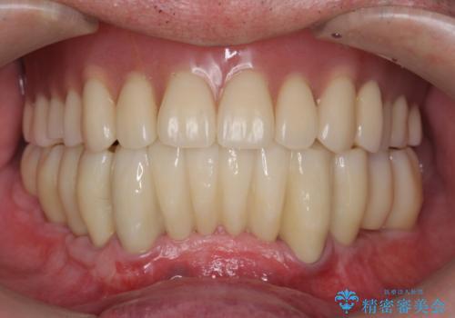 [ 重度歯周病 ] インプラント・義歯による咬合再構築の症例 治療後