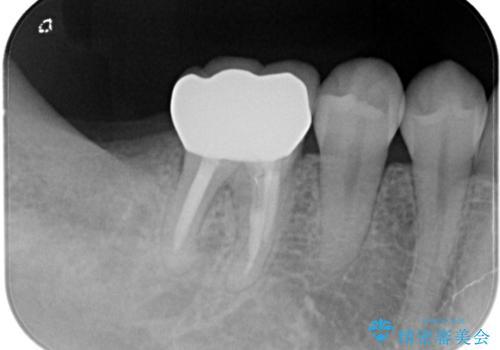 【オールセラミック】奥歯が痛い。根管治療〜被せ物治療の治療後