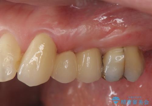 小矯正を伴う臼歯部ブリッジ治療の症例 治療後