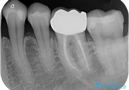 【メタルフリー】白い歯を手に入れたいの治療後