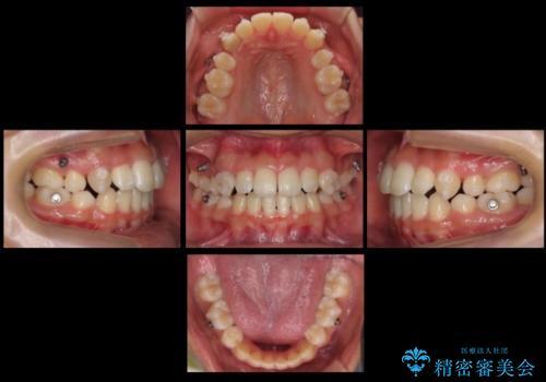 インビザラインチェンジで成功 インビザラインで八重歯の抜歯矯正の治療中