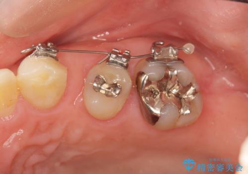 小矯正を伴う臼歯部ブリッジ治療の治療中