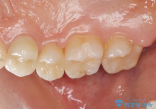 銀歯を白くしたい 隙間がしみるの症例 治療後
