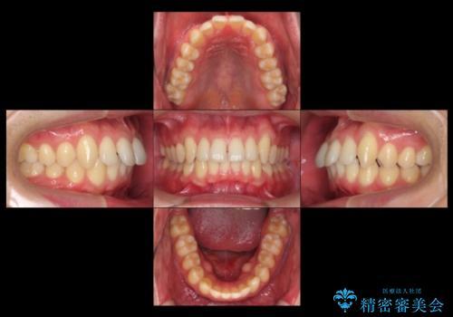 前歯のすき間 セラミックで綺麗に 最短で治療の治療前