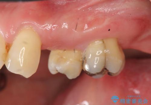 小矯正を伴う臼歯部ブリッジ治療の症例 治療前