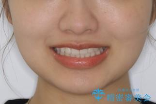 前歯のがたつきをインビザラインで治療の治療後(顔貌)