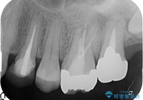 歯ぐきから出る膿 何度治療しても治らない 精密根管治療 50代男性の症例 治療前