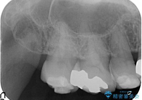 [ セラミック治療 ]歯の色が気になる 虫歯も治したいの治療前