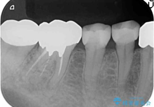 被せ物を入れたばかりの歯が痛む 40代女性の治療前