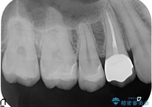 銀歯を白くしたい 隙間がしみるの治療後