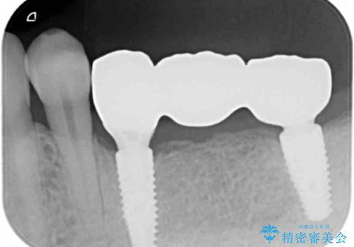 臼歯部インプラント補綴の治療後