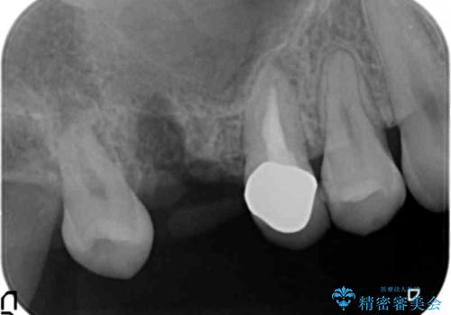 インプラントも入れ歯も嫌 親知らずの移植 20代女性の治療中