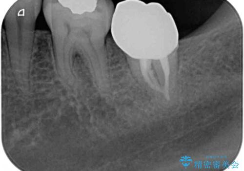 奥歯が痛い 保険治療後に症状が発現した歯のむし歯治療の治療後