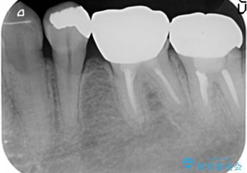 低予算で銀歯を白くしたい 50代女性の治療前