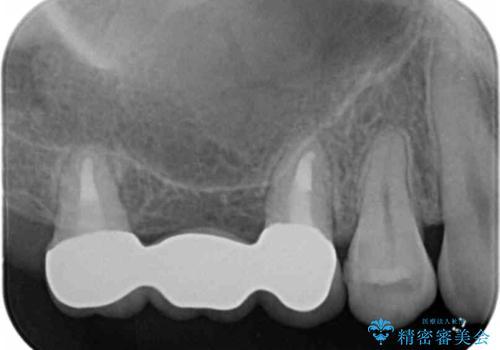 インプラントも入れ歯も嫌 親知らずの移植 20代女性の治療後