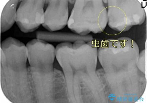 奥歯の虫歯 歯の間を広げてセラミックでしっかり治療の治療前