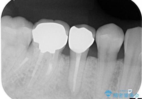 歯肉にできものがある、根管治療からセラミッククラウンまでの治療後