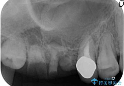 インプラントも入れ歯も嫌 親知らずの移植 20代女性の治療前