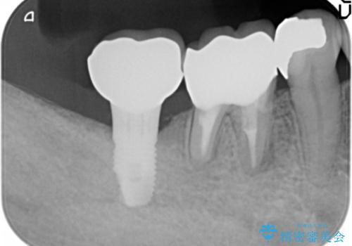 骨が少なくインプラントできないと言われた 下の奥歯のインプラント 60代男性の治療後