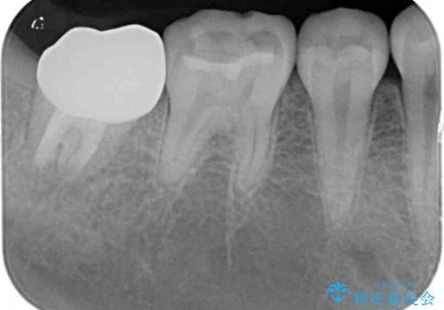 クラウンがすぐに外れてしまう 歯冠長延長術を用いた補綴治療の治療後