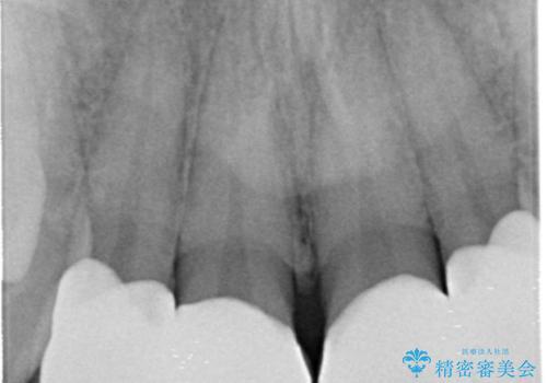 前歯のすき間 セラミックで綺麗に 最短で治療の治療後