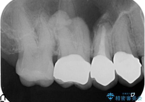 他院で仮歯まで入れたが違和感がある 40代女性の治療後