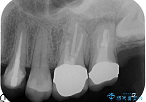 歯ぐきから出る膿 何度治療しても治らない 精密根管治療 50代男性の症例 治療後