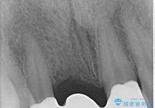 折れているのに応急処置でごまかしてきた前歯 オールセラミックブリッジによる補綴治療の治療後