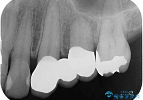 小矯正を伴う臼歯部ブリッジ治療の治療後