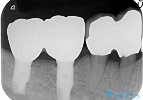 歯がないまま放置していた 奥歯のインプラント 50代男性の治療後