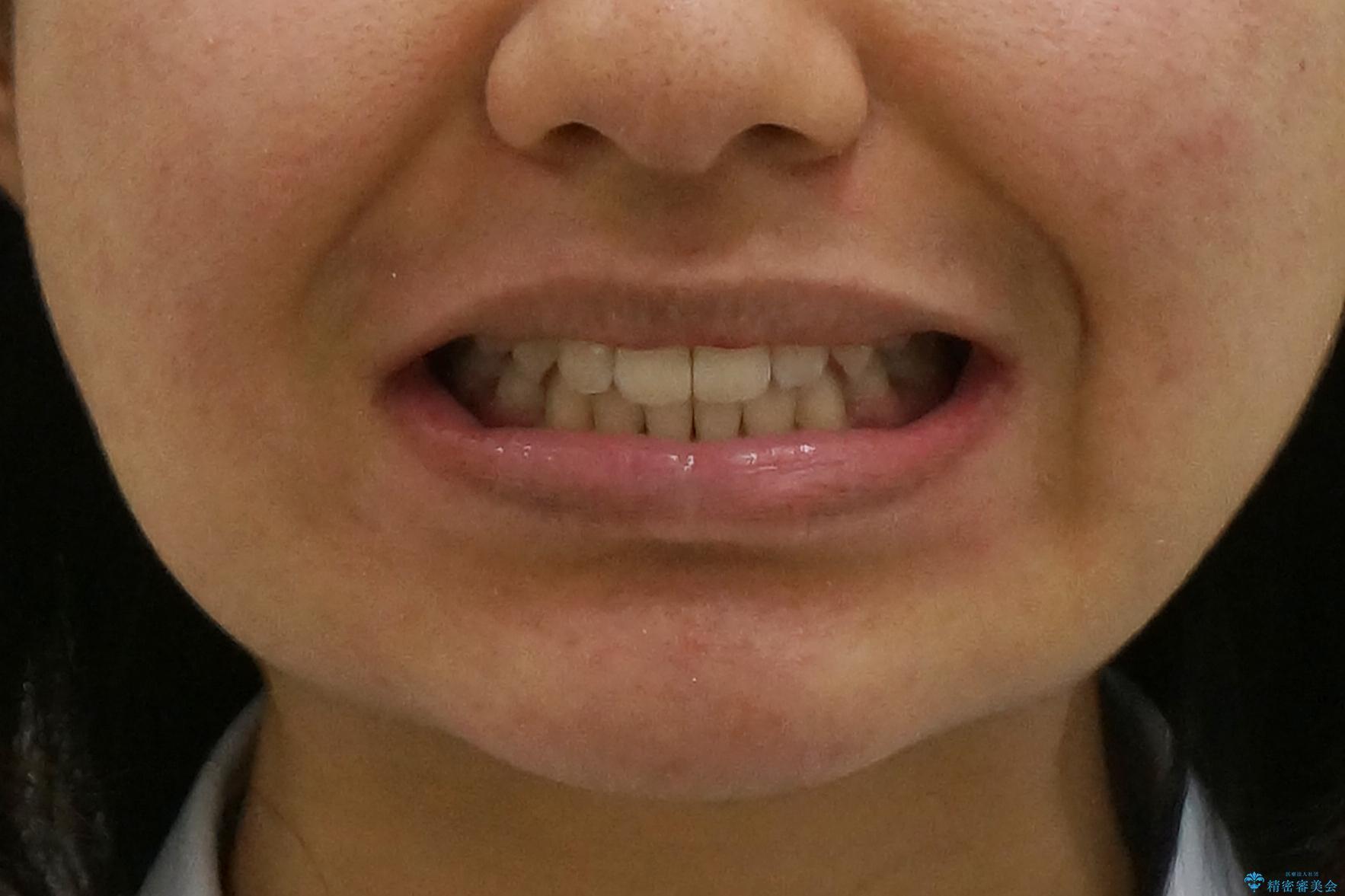 インビザラインチェンジで成功 インビザラインで八重歯の抜歯矯正の治療後(顔貌)
