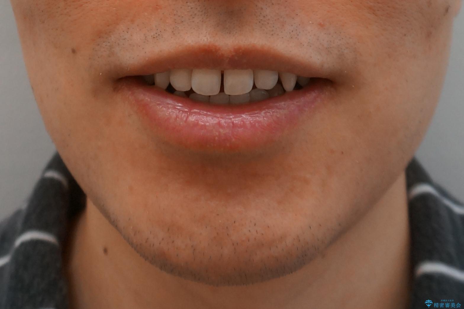 前歯のすき間 セラミックで綺麗に 最短で治療の治療前(顔貌)