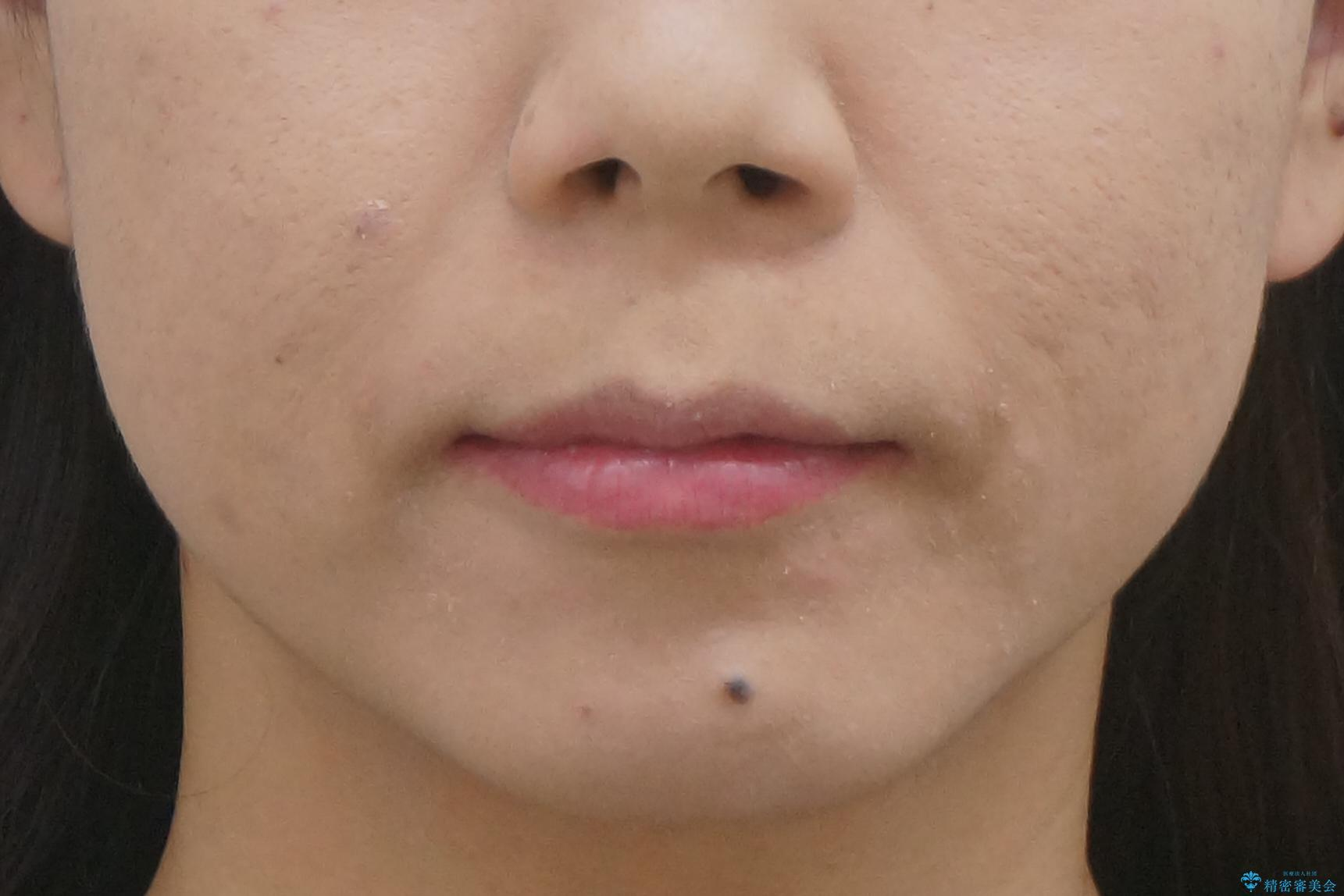 出っ歯 下の歯のガタガタ 下の前歯のみ1本抜歯 マウスピースで1年の治療後(顔貌)