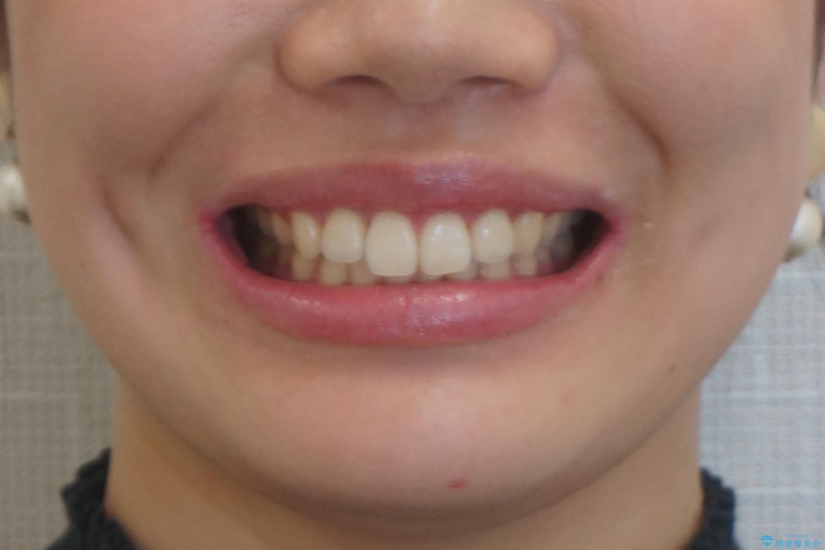 下の前歯が1本短い インビザラインと部分矯正の組み合わせの治療後(顔貌)