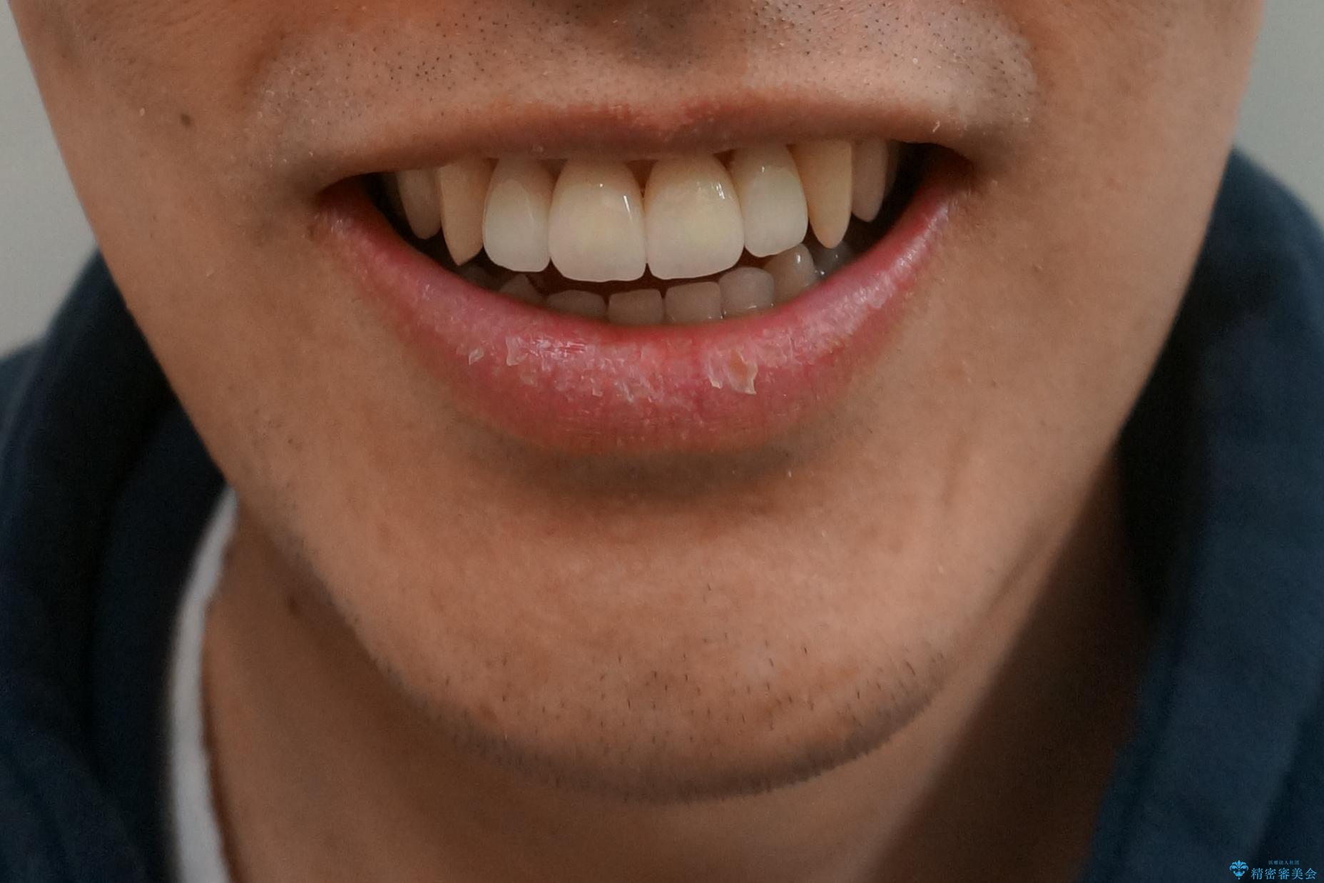 前歯のすき間 セラミックで綺麗に 最短で治療の治療後(顔貌)