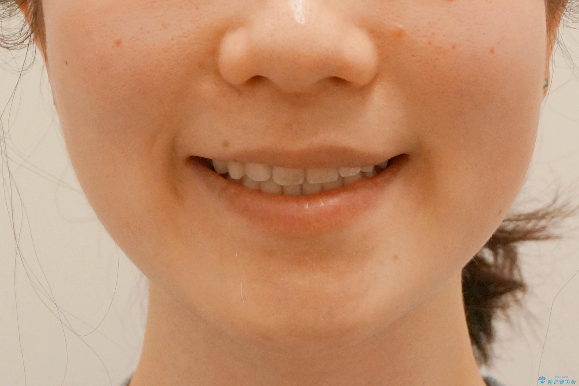 前歯が気になる 大人のマウスピース矯正 矮小歯を整えるの治療後(顔貌)