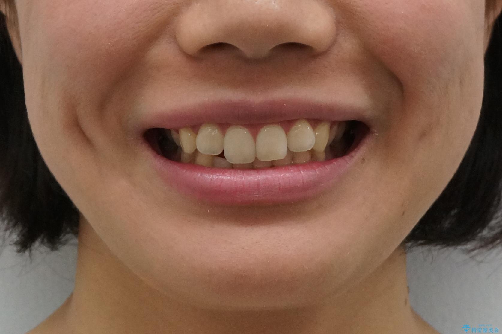 下の前歯が1本短い インビザラインと部分矯正の組み合わせの治療前(顔貌)