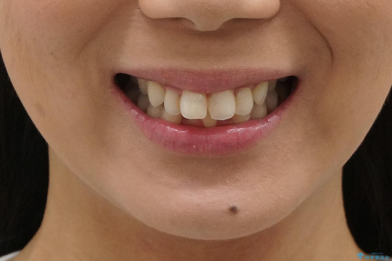 出っ歯 下の歯のガタガタ 下の前歯のみ1本抜歯 マウスピースで1年の治療前(顔貌)