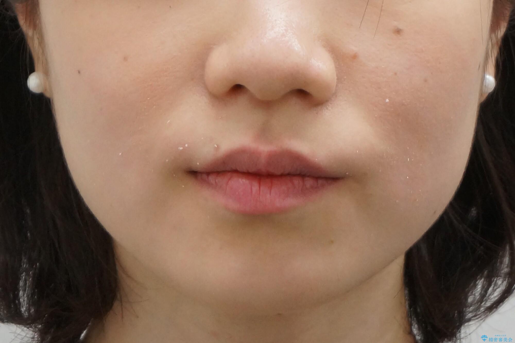 前歯が気になる 大人のマウスピース矯正 矮小歯を整えるの治療前(顔貌)