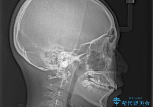 気がつくと口が開いてしまう 閉じにくい口元改善の抜歯矯正の治療前