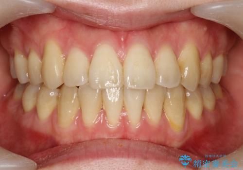 プラークなどによる歯の黄ばみの治療前
