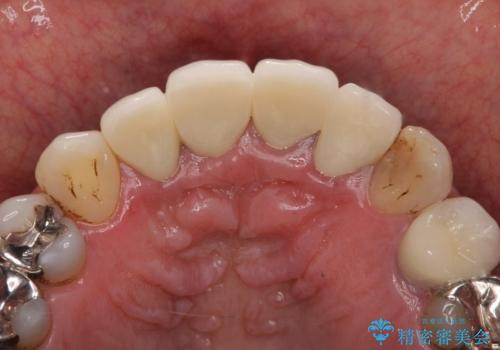 老朽化した前歯のクラウンやりかえの治療後