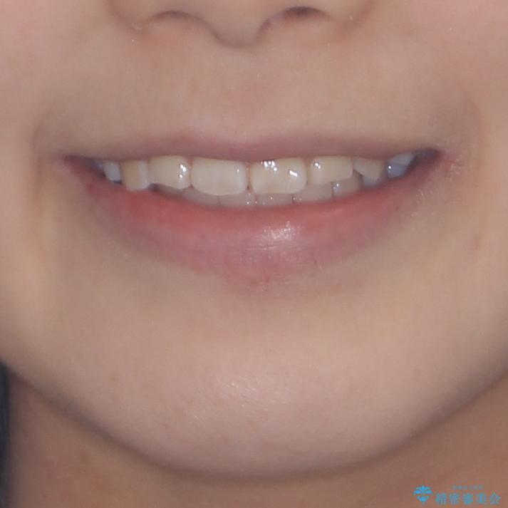 前歯が磨きにくい 目立たないワイヤー装置による矯正治療の治療後(顔貌)