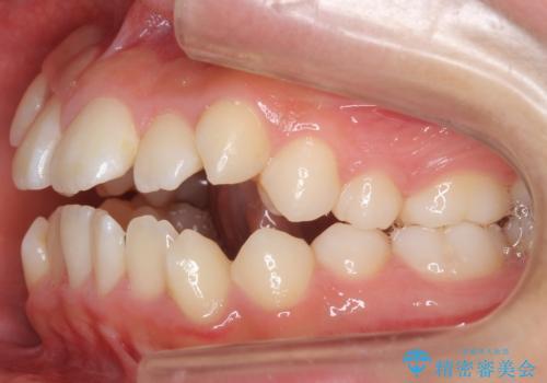 インビザラインチェンジで成功 インビザラインで八重歯の抜歯矯正の治療前