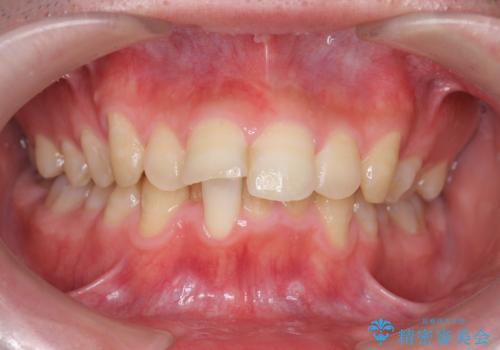 [ インビザライン ] マウスピース矯正で治す出っ歯の治療の治療前