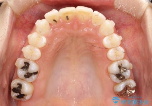 前歯のガタガタをインビザラインで矯正の治療中
