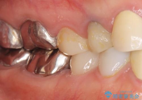 被せ物を入れたばかりの歯が痛む 40代女性の治療後