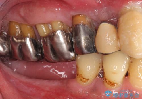 骨が薄く難しい上の奥歯のインプラント 50代男性の治療前