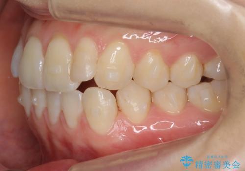 前歯が気になる 大人のマウスピース矯正 矮小歯を整えるの治療中