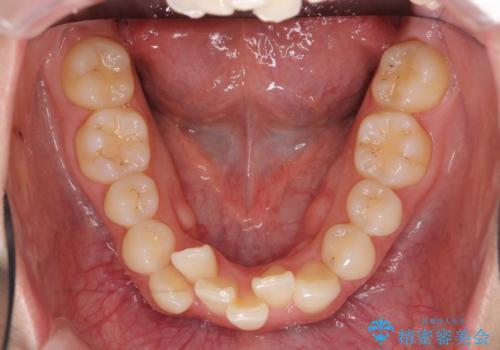 出っ歯 下の歯のガタガタ 下の前歯のみ1本抜歯 マウスピースで1年の治療前